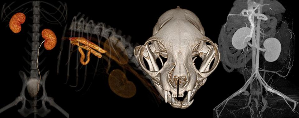 A 3D rendering of a single congenital left gastric portosystemic shunt
